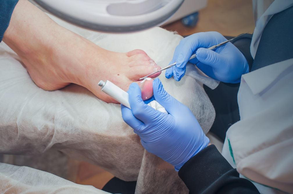 Treating Fungal Nail Infections